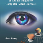 """On 29 March 2017 Jiong Zhang successfully defended his PhD thesis entitled """"Multi-Orientation Analysis of Retinal Images for Computer-Aided Diagnosis"""" at TU/e"""